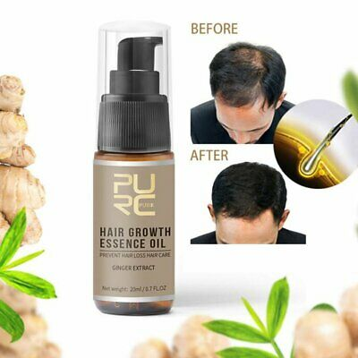 Miracle Hair Growth Germinal Hair Hairdressing Serum Oil Loss Treatement MN