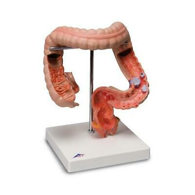 3B Scientific Colon Intestinal Diseases Anatomical Model K55 Anatomy