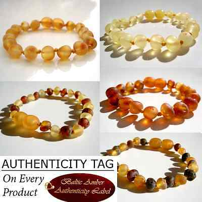 MAXIMUM EFFECT RAW AMBER Child (3yr+*) Anklets/Bracelets - AGbA® Certified Amber