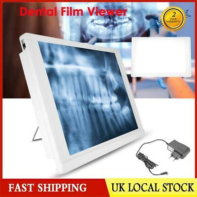 Dental XRay Film Viewer Medical Diagnostic Tool LED Illuminator View Box Light .