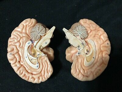 Somso BS21 Deluxe Human Brain Model, 2-Part Anatomical Model BS 21 without Base