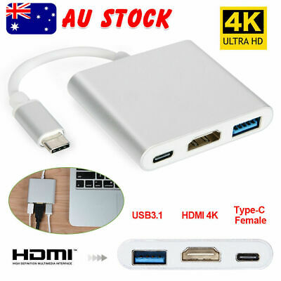 3IN1 USB 3.1 Type-C USB-C to 4K HD HDMI HUB Data Adapter Cable Macbook iPad Pro