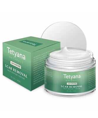 Tetyana Naturals Scar Removal Cream Advanced Treatment for Face Body Natural!