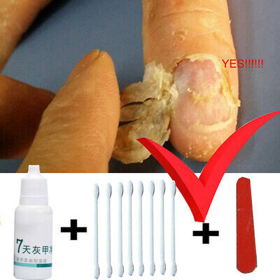 Toe Nail Fungus Treatment Anti Fungal Cure Clear Care Removal Essence Yellow