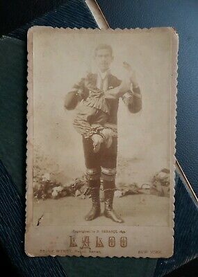 Antique Cabinet Card SIDE SHOW FREAK/ Circus Laloo w parasitic twin, 1892