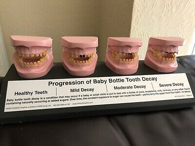 Model Of Baby Bottle Tooth Decay