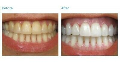 VERY STRONG Tooth Teeth Whitening Bleach 1 x 10ML 44 Gel (10 x SAFE & FAST APPS)