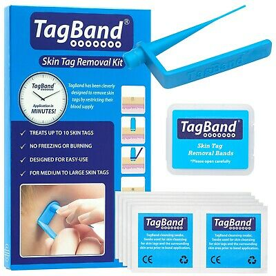 TagBand Skin Tag Remover Device for Quick & Effective SkinTag Removal Treatment