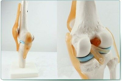 17x14.5x29.5CM Anatomical Anatomy Functional Knee-joint Medical Model #A399 LW