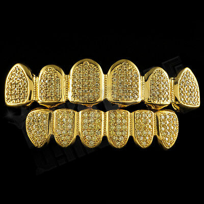 18K Gold Plated Canary CZ Micro Pave Top Bottom CUSTOM GRILLZ SET Teeth Grills