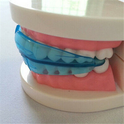 2016 Straight Teeth System for Teens Adults Orthodontic Retainer box cleaning AC