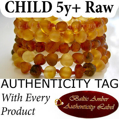 TEENAGER CHILD (5yrs+) RAW BALTIC AMBER Bracelet/Anklet (17-18cm)