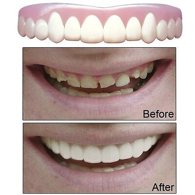 Natural Imako Cosmetic Teeth, size Small. Free Delivery