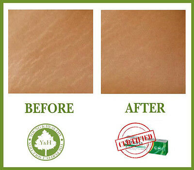 *** BEST STRETCH MARKS REMOVAL treatment cream for Legs, Bum, Back, Breasts, Arm