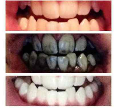 100% Natural Activated Charcoal Coconut UltraFine Teeth Whitening Powder
