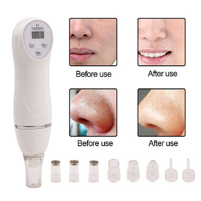 6 Tips Dermabrasion Peeling Machine Facial Skin Care Massager Microdermabrasion