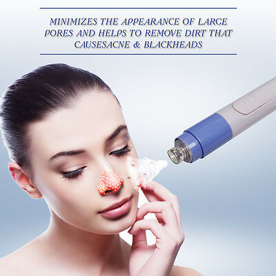 Electric Facial Pore Cleanser Face Blackhead Acne Remover Skin Cleaner Tool New