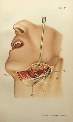 Antique Viennese 1890s Medical Dissection Anatomy Bookplate Neck Artery Surgery
