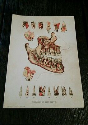 Antique Medical Diseases Of The Teeth Diagram Dental Copyright 1912 Wagner