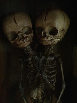 Two Headed Skeleton Fetus in large old Display Case - Sideshow Curiosity