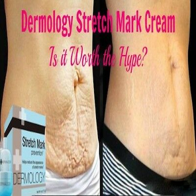 DermologyⓇ Stretch Marks Cream Removal Remover Intensive Serum Complex Formula