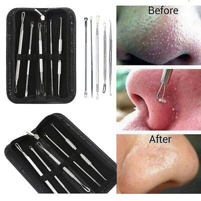 5pcs Acne Blackhead Comedone Pimple Blemish Remover Extractor Tool Kit Stainless