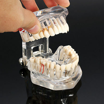 Dental Implant Disease Study Teachin Teeth Model Restoration Bridge Tooth BT