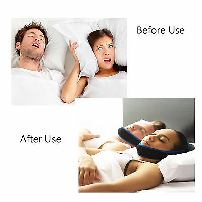 Adjustable Anti Snoring Chin Strap Belt Stop Snore  Apnea Jaw Support UK Stock