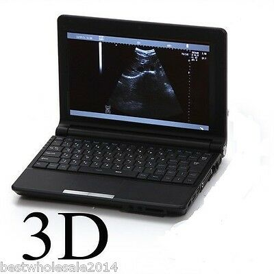 10.1 Inch 3D Full Digital Laptop Ultrasound Scanner with Linear Probe CE Sale