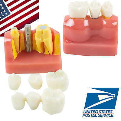 USA FDA Dental Teeth Model Demonstration Implant Analysis Removable Crown Bridge