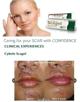 (9g x 2) Cybele Scagel Smoothening Skin Acne Scars Keloid Burn With Natural Ext.