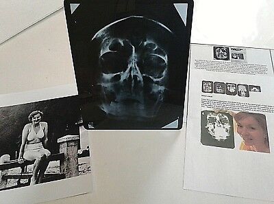 Eva Braun Photo Wife Of Hitler W X-Ray Owned By Doctor Museum Piece Historical 1