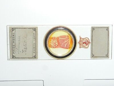 Antique microscope slide of human testicle by Prize Medal.