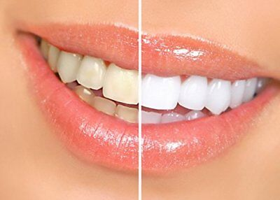 Profesional Teeth Whitening Strips - Non Peroxide - Good for Sensitive Teeth