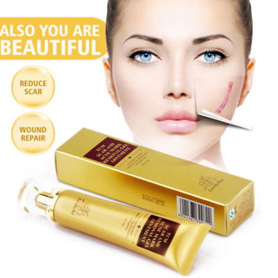 Ginseng Scar Removal Acne Treatment Face Cream Roller Skin Body Repair Derma Gel