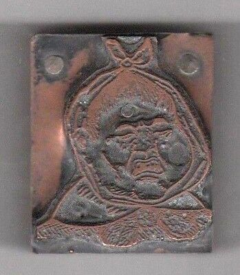 Wood Mounted Copper Printing Plate Of A Boy With A Toothache Dental Image