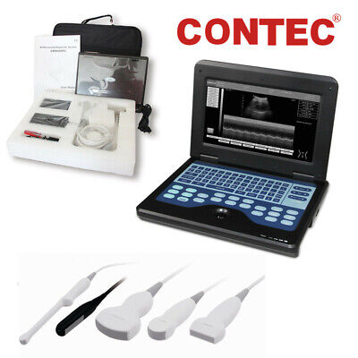 Laptop/Portable CMS600P2 Digital Ultrasound Scanner Machine Systems w/ Probe, US