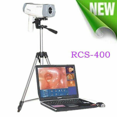 Portable Video Electronic Colposcope Exam SONY Image Colposcopy Tripod/Software