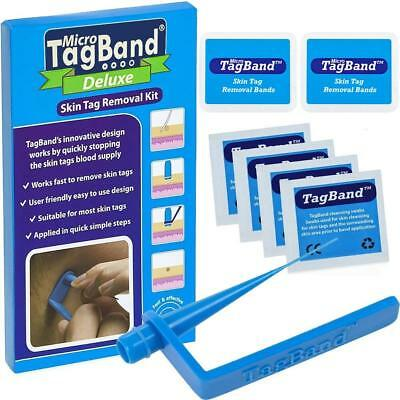 Micro TagBand for Skin Tag Remover Kit with Extra Bands and Free Retainer Box US