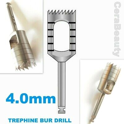 Trephine Bur Drill 4.0 mm Dental implant, Dental Bone Graft Surgery