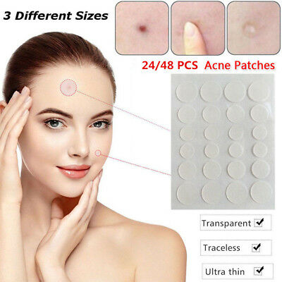 24/48Pcs 24H Acne Skin Tags Remover Pimple Master Patch Treatment Care Tool Hot