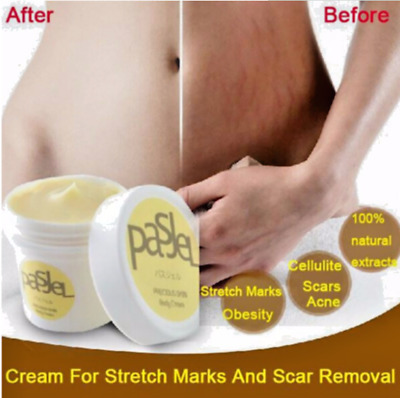 Natural PASJEL Skin Body Whitening Cream For Eliminate Stretch Mark Scar Removal