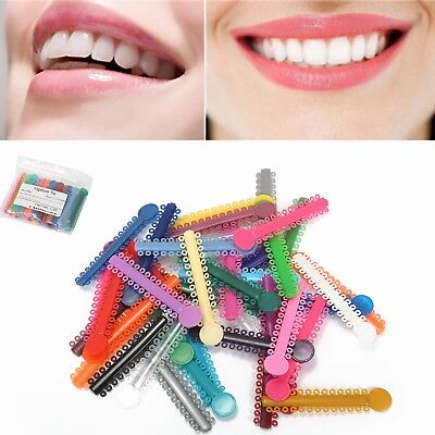 Dental Ligature Ties Orthodontics Bands Elastic Rubber 1040Pcs/1Pack Multi Color