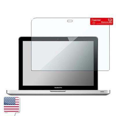 "Clear Screen Protector Film For Macbook Pro 13 Retina Display 13.3"" 2014/2015"