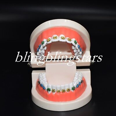 Dental Orthodontic Tooth Model Bracket Arch Wire Chain  Typodont Buccal Tube Tie