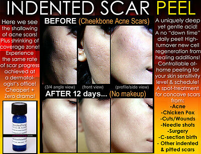 Indented Acne Scar Removal Peel Chicken Pox Ice pick Rolling Boxcar Scars