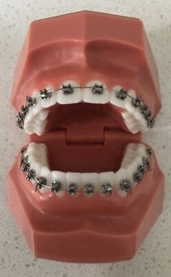 Dental Orthodontic Typodont Teeth Study Model with Braces- NEW
