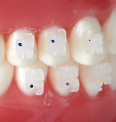 Orthodontic Clear Brackets MBT .022 Slot With 3,4&5 Hooks Ceramic 10 sets