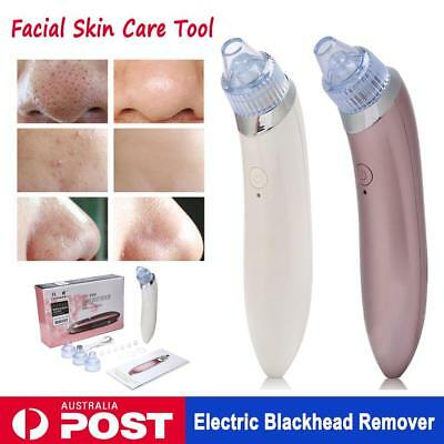 Electronic Blackhead Acne Remover Dermabrasion Facial Cleaner Derma Suction
