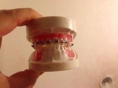 Orthodontic Braces Nissin Dental Model
